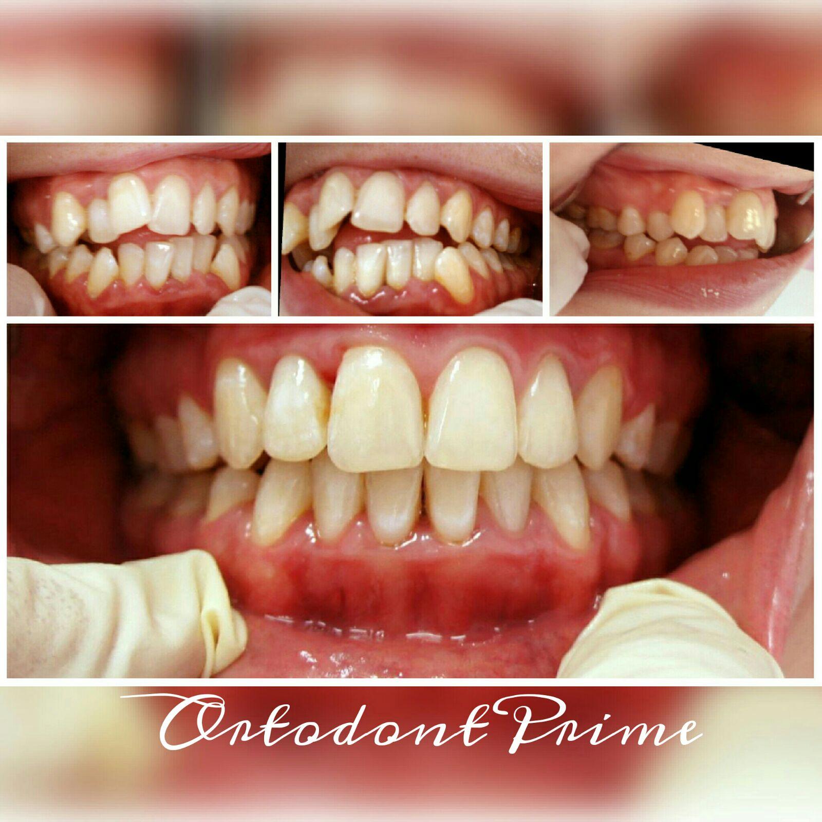 Как исправить один неровный зуб